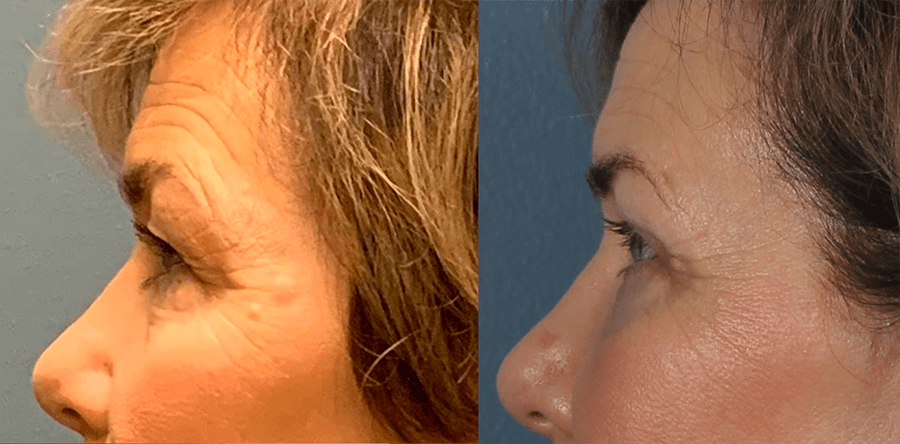 Upper and Lower Blepharoplasty