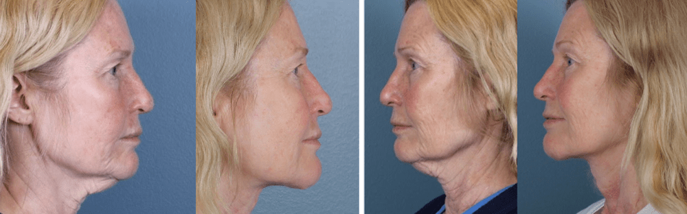 Midline facelift and scar revision