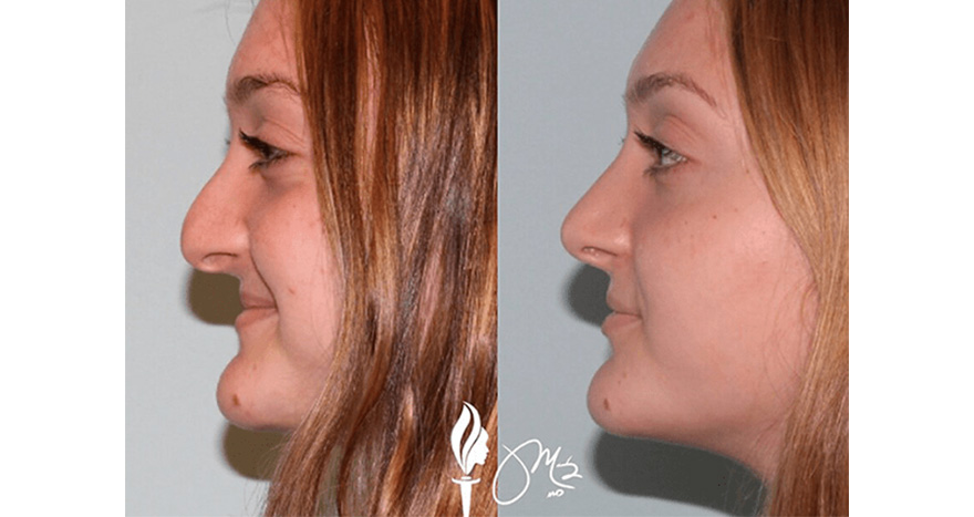 Rhinoplasty Patient Before and After Surgery