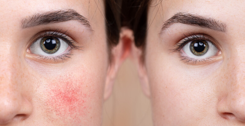 Treating Rosacea With Oral Medication