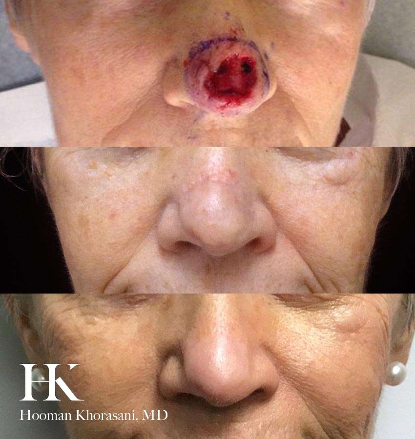 Healing progression from Mohs Surgery by Dr. Hooman Khorasani