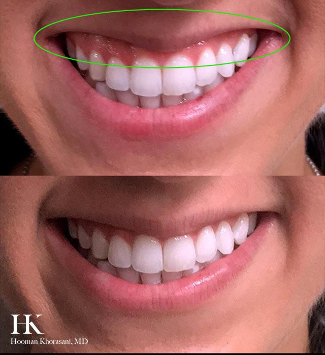 Gummy Smile Correction using Botox by Dr. Hooman Khorasani