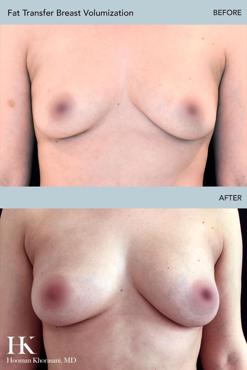 Fat Transfer Breast Volumization by Dr. Hooman Khorasani