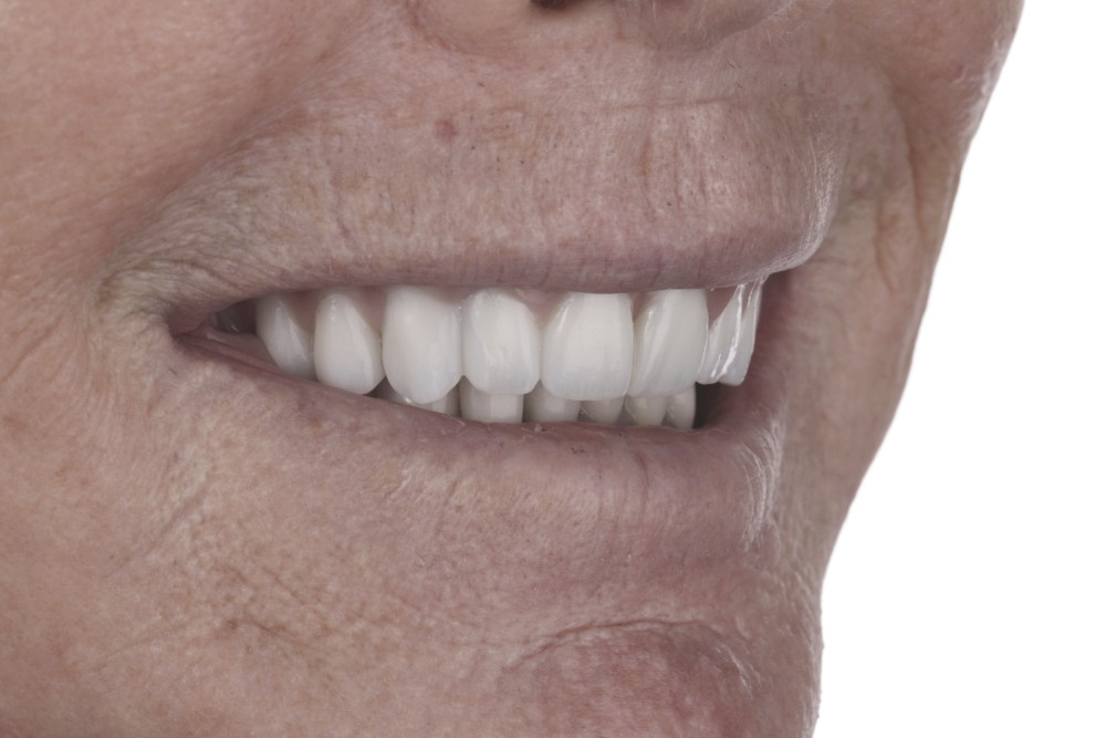 closeup of woman smiling with implants