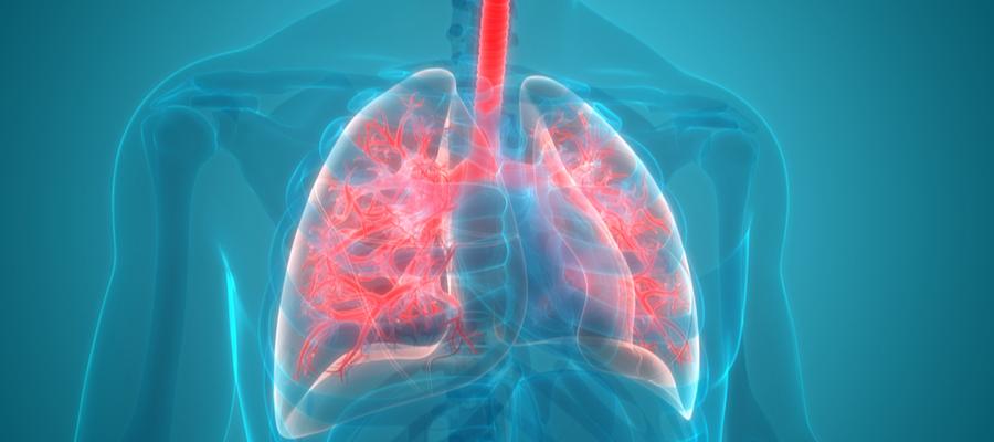 Lungebetennelse