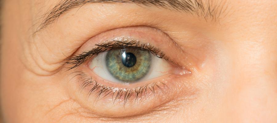 Fjerne poser under øynene
