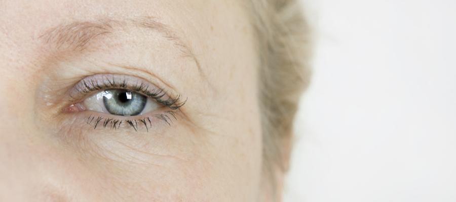 Øyelokkoperasjon