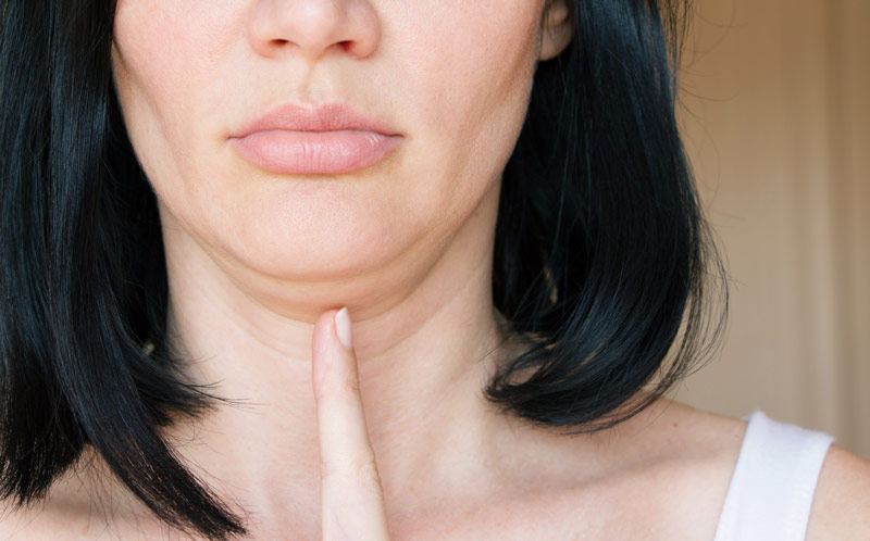 Tired of Living with a Double Chin? Learn About Kybella