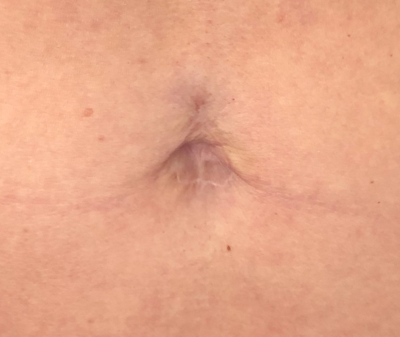 Belly Button Revision 2
