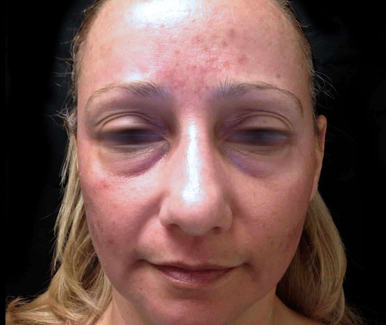 Laser Skin Resurfacing TotalFX 3