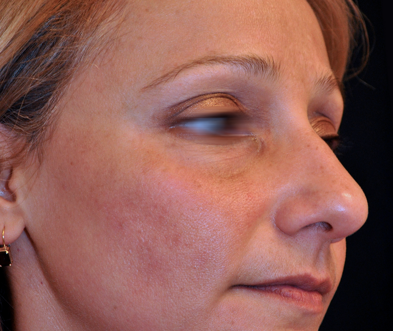 Brown Spot & Discoloration Removal
