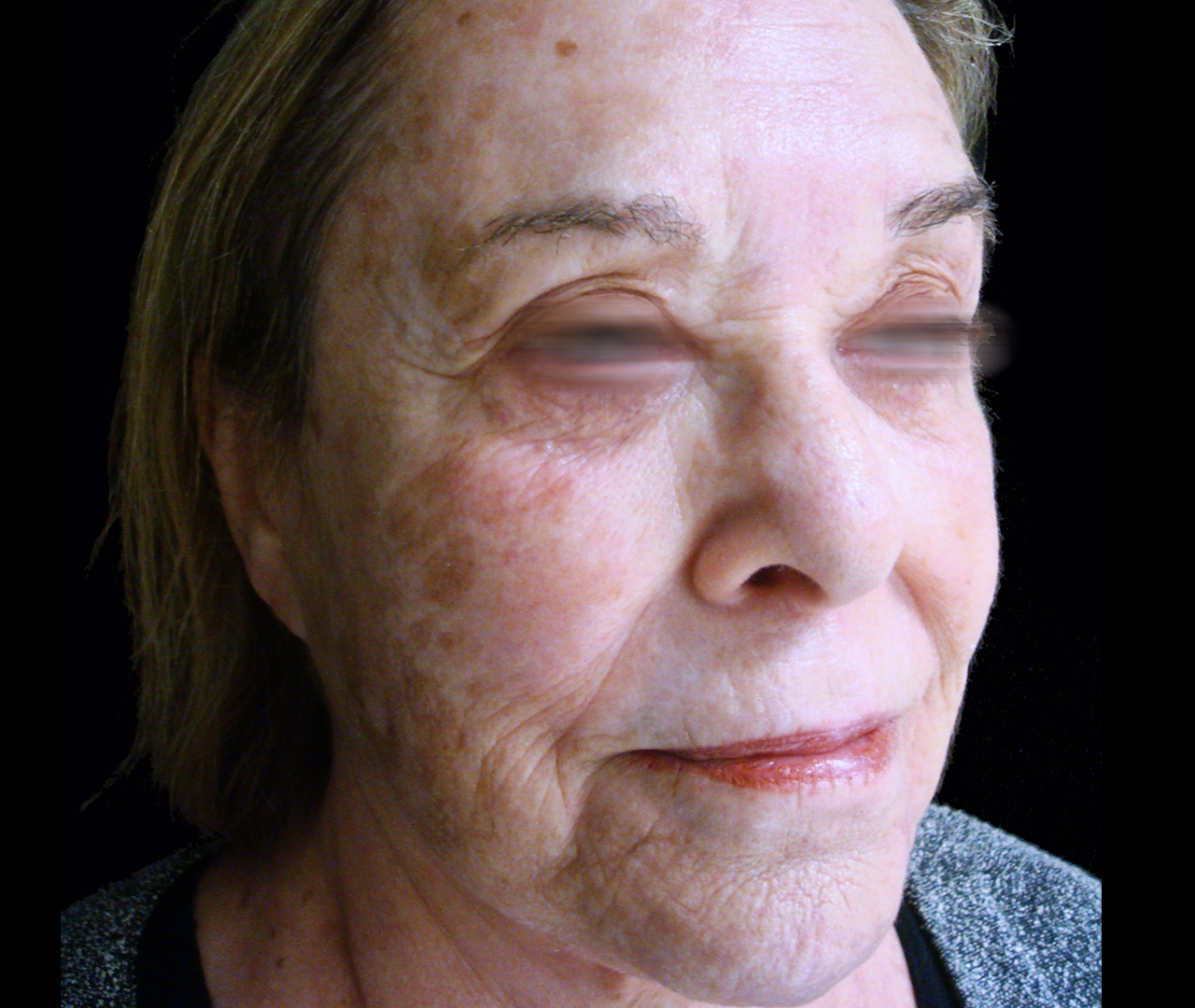 Laser Skin Resurfacing TotalFX 4