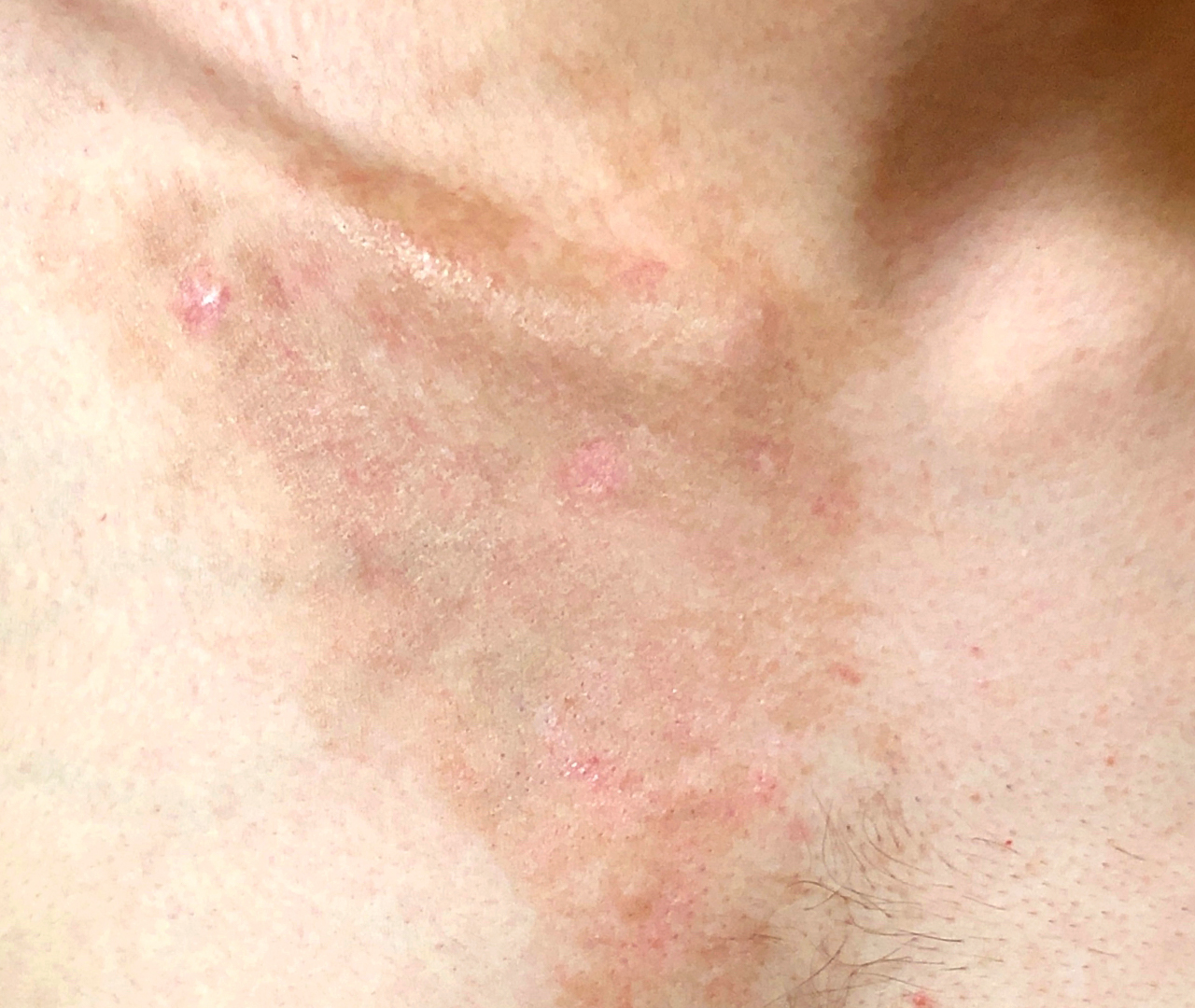 Brown Spot & Discoloration Removal 5