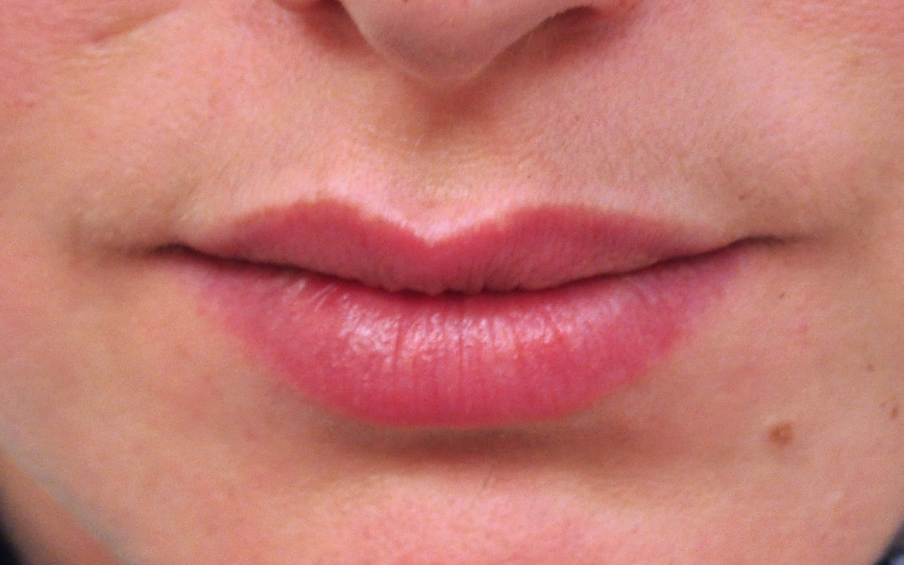 Lip Augmentation 4