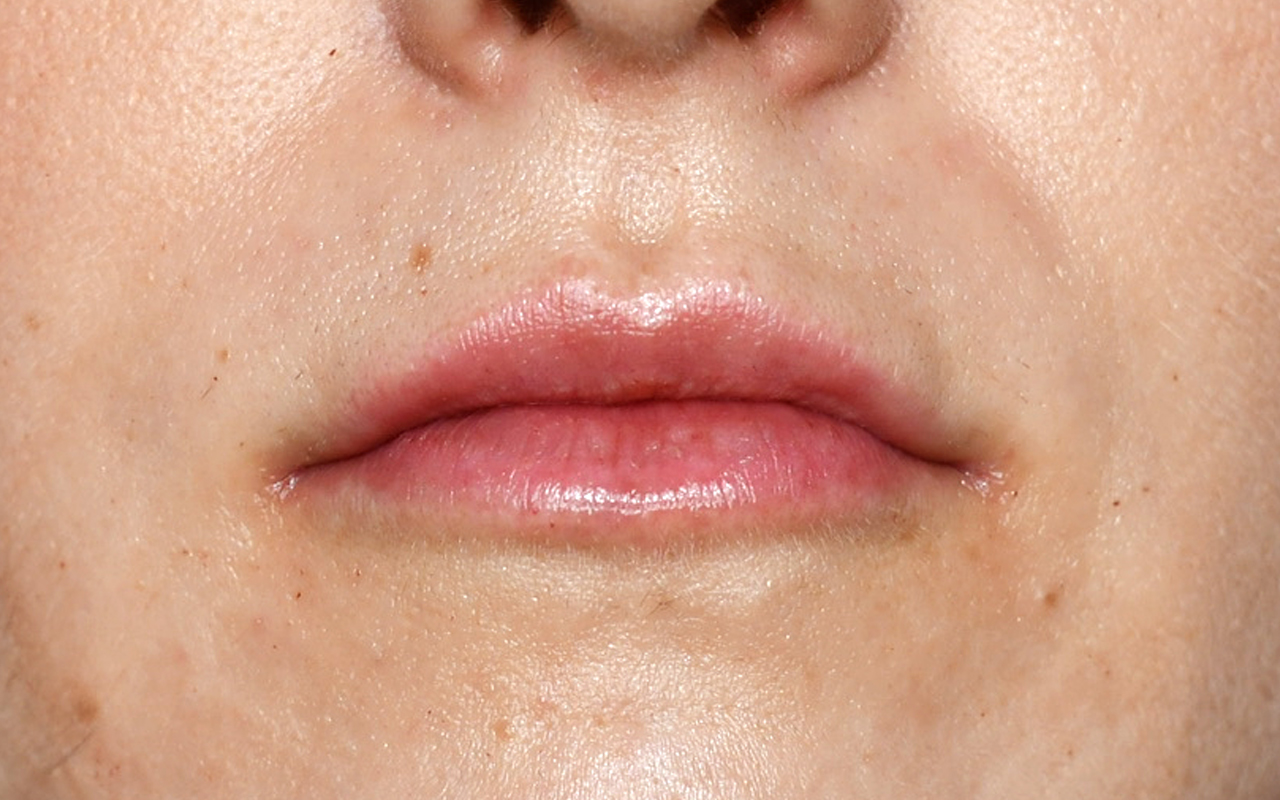 Lip Augmentation 5