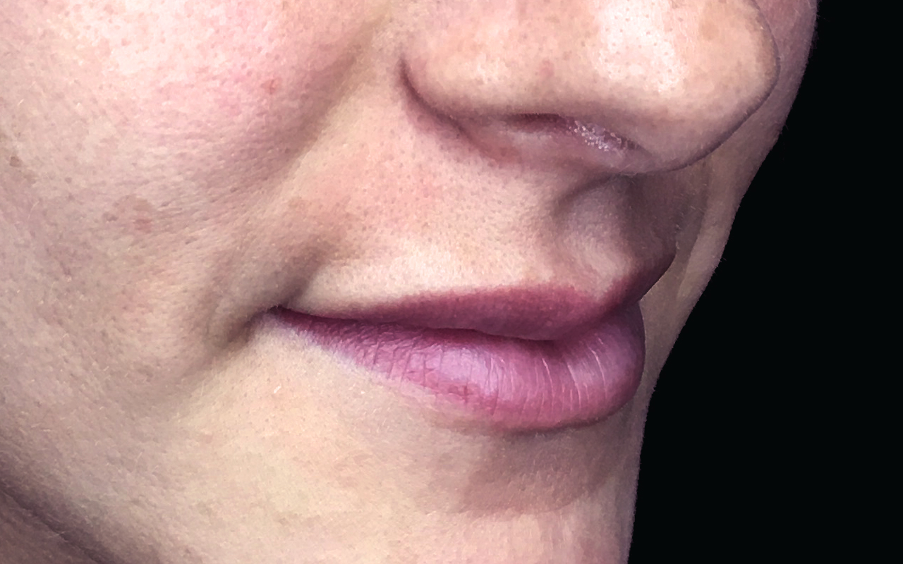 Lip Augmentation 6