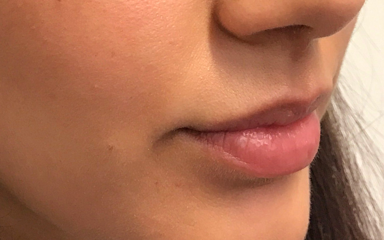 Lip Augmentation 7
