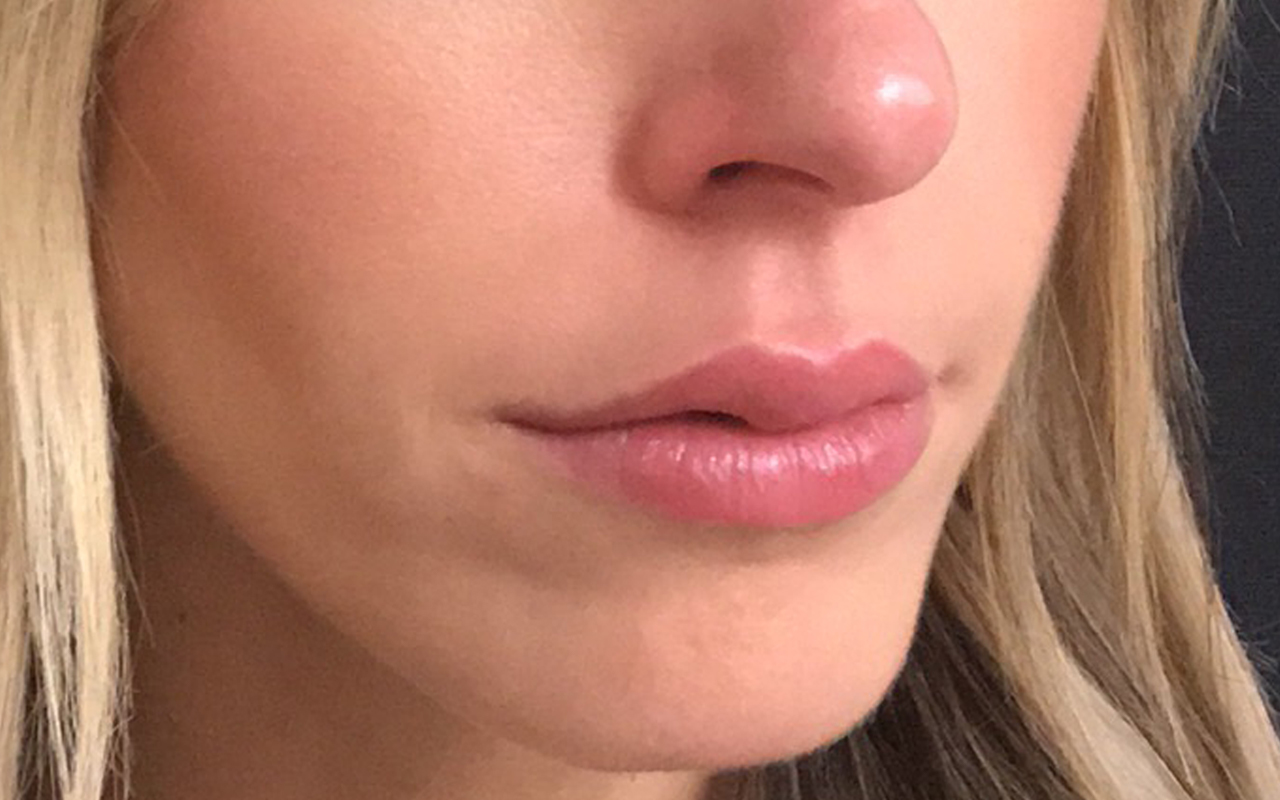 Lip Augmentation 8