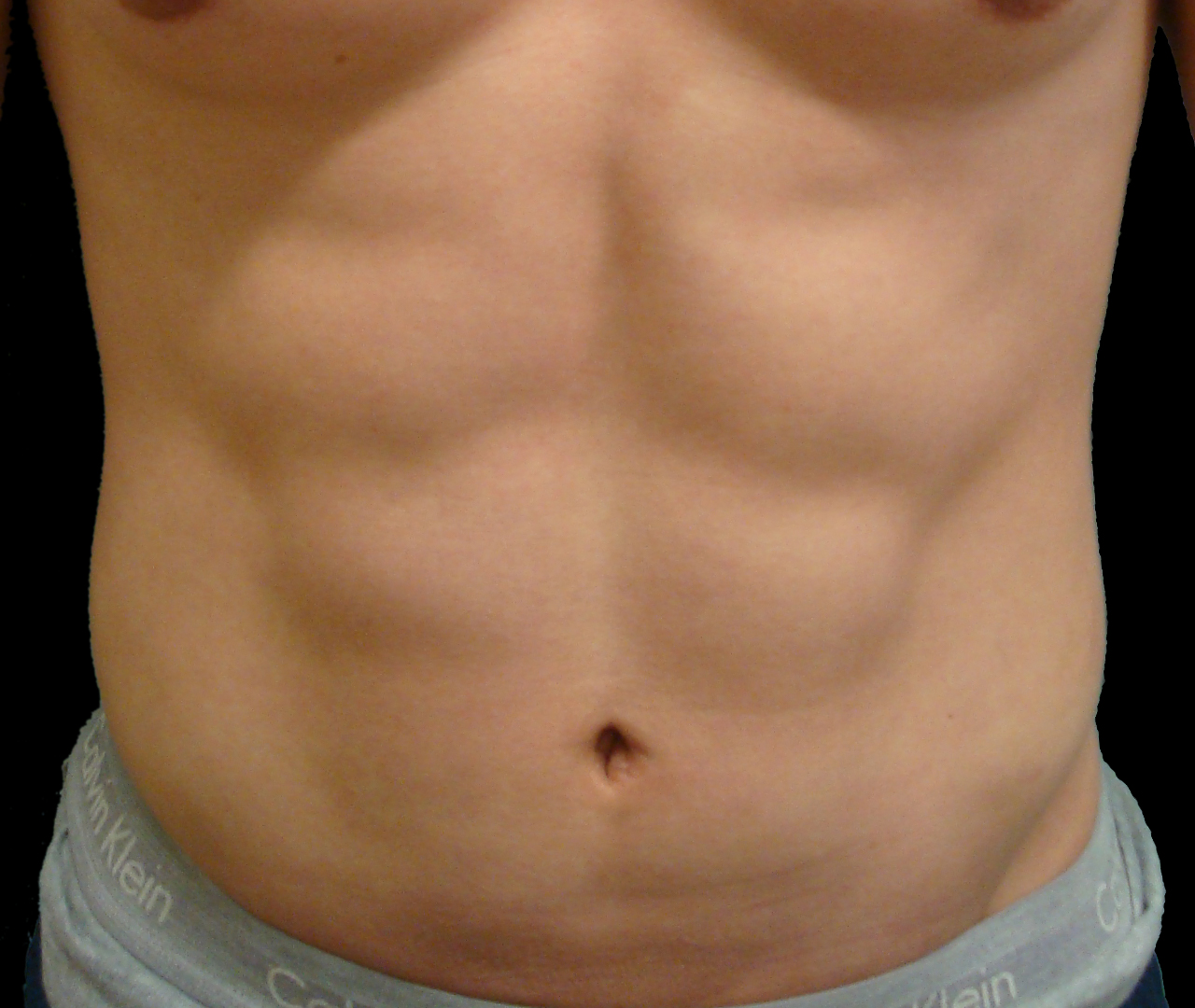 Liposuction Body