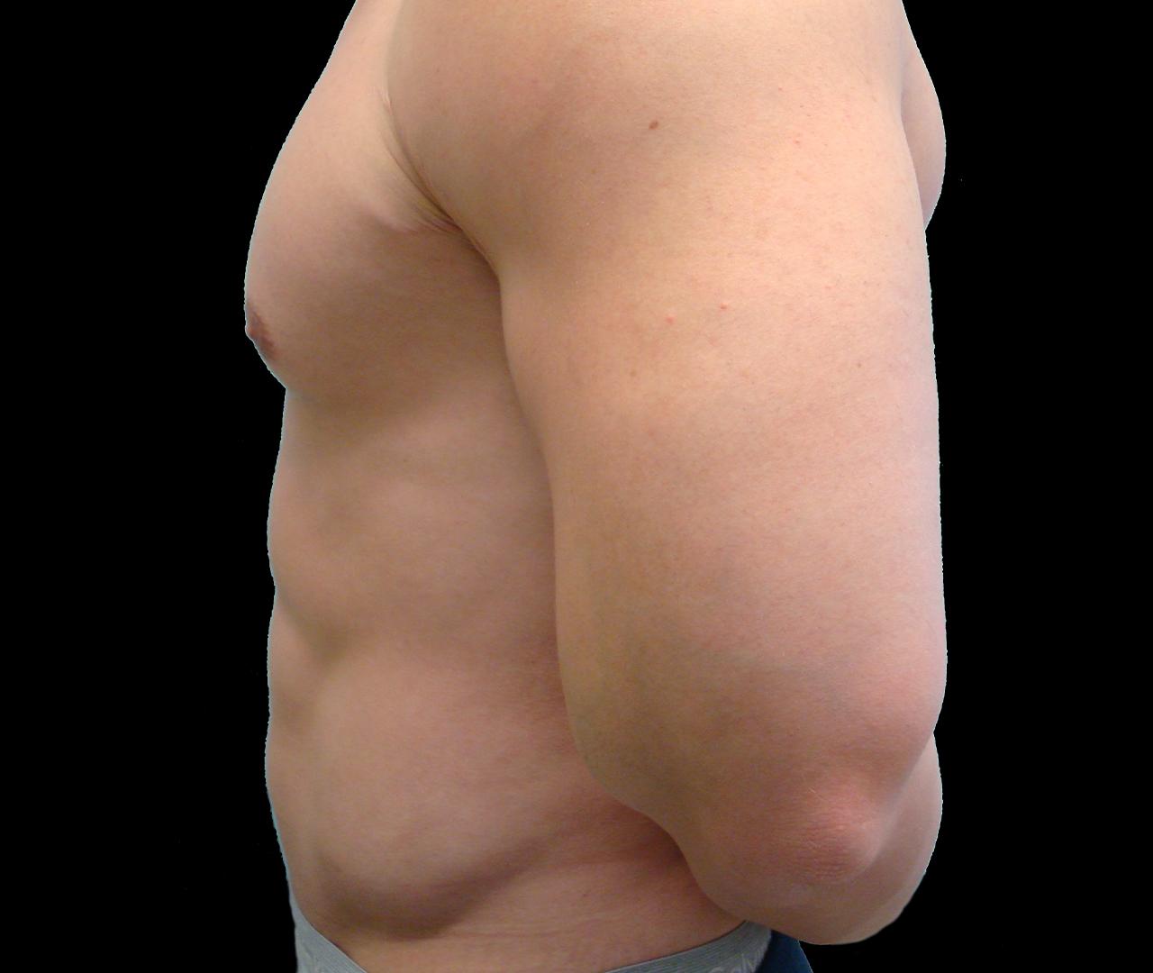 Liposuction Body