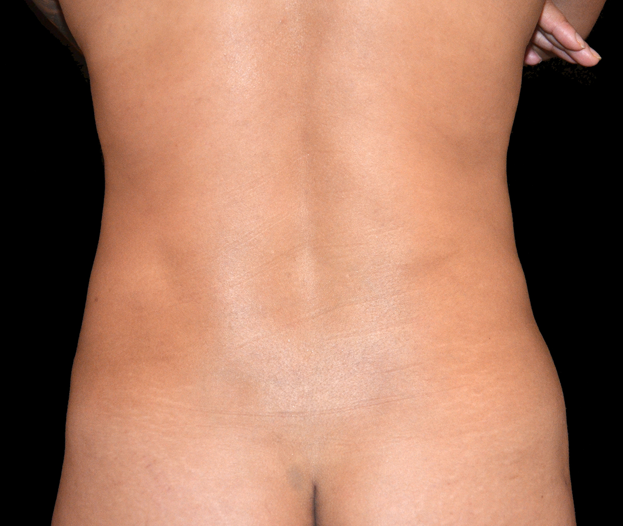 Liposuction Body 4