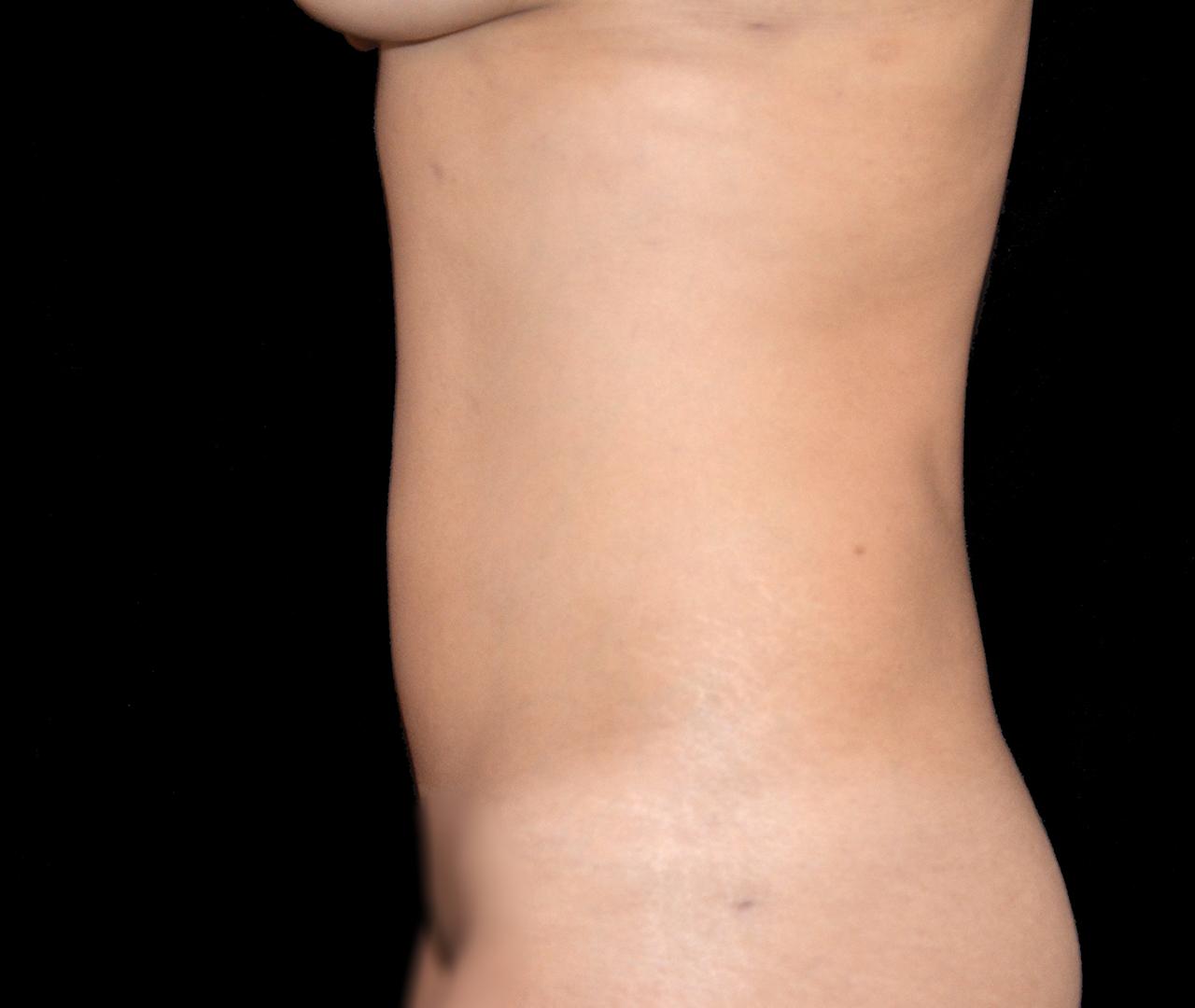Liposuction Body 4