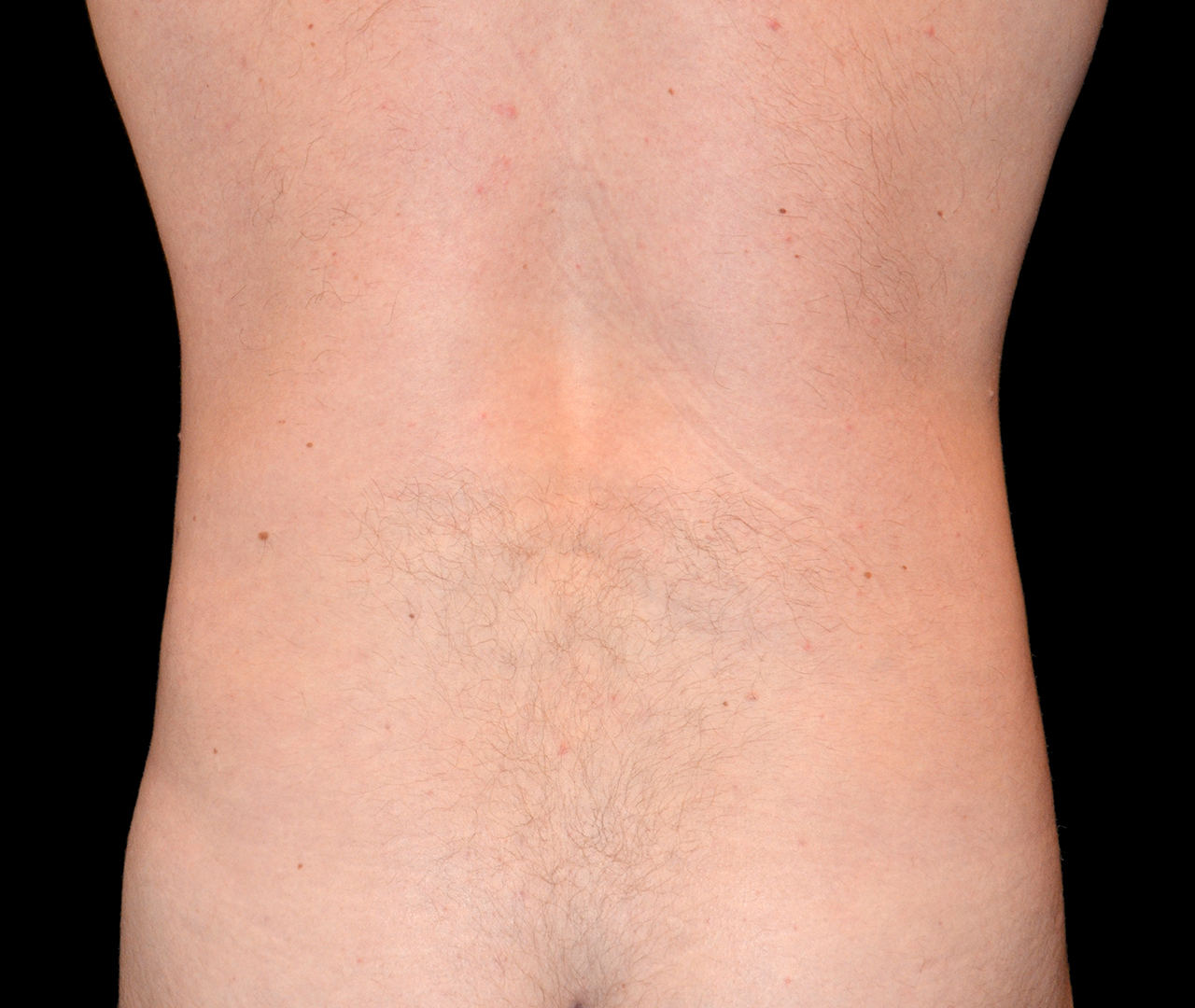 Liposuction Body 5