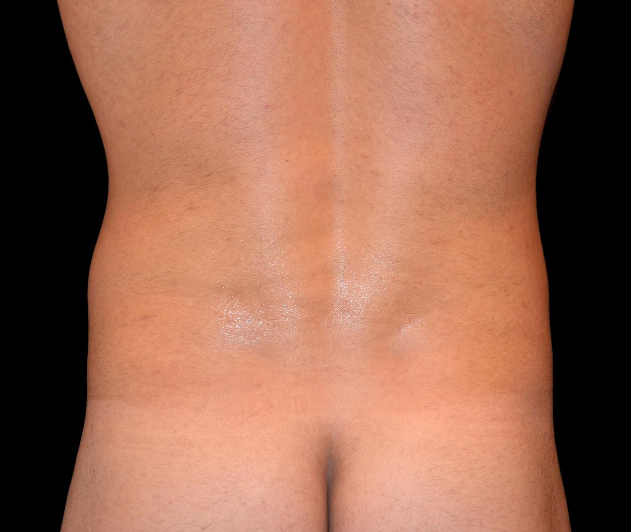 Liposuction Body 6