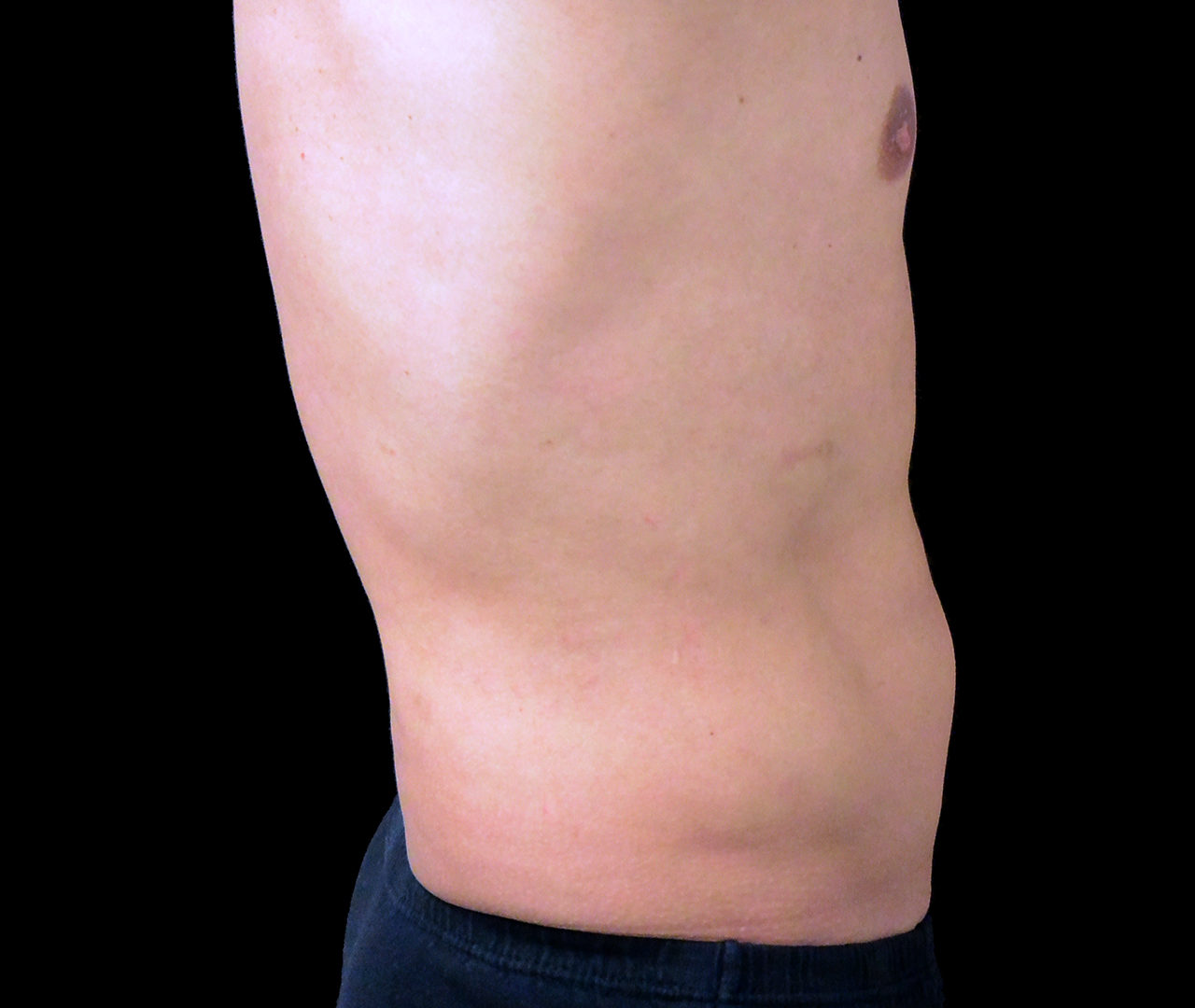 Liposuction Body 9