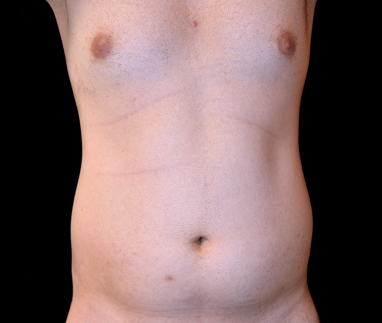Liposuction Body 10