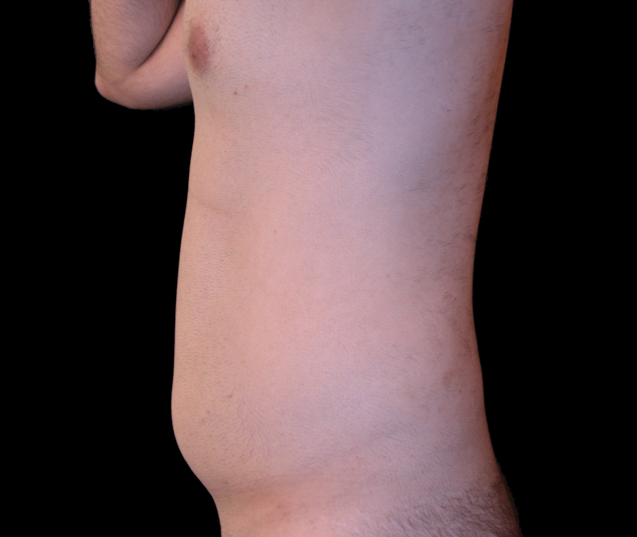 Liposuction Body 10