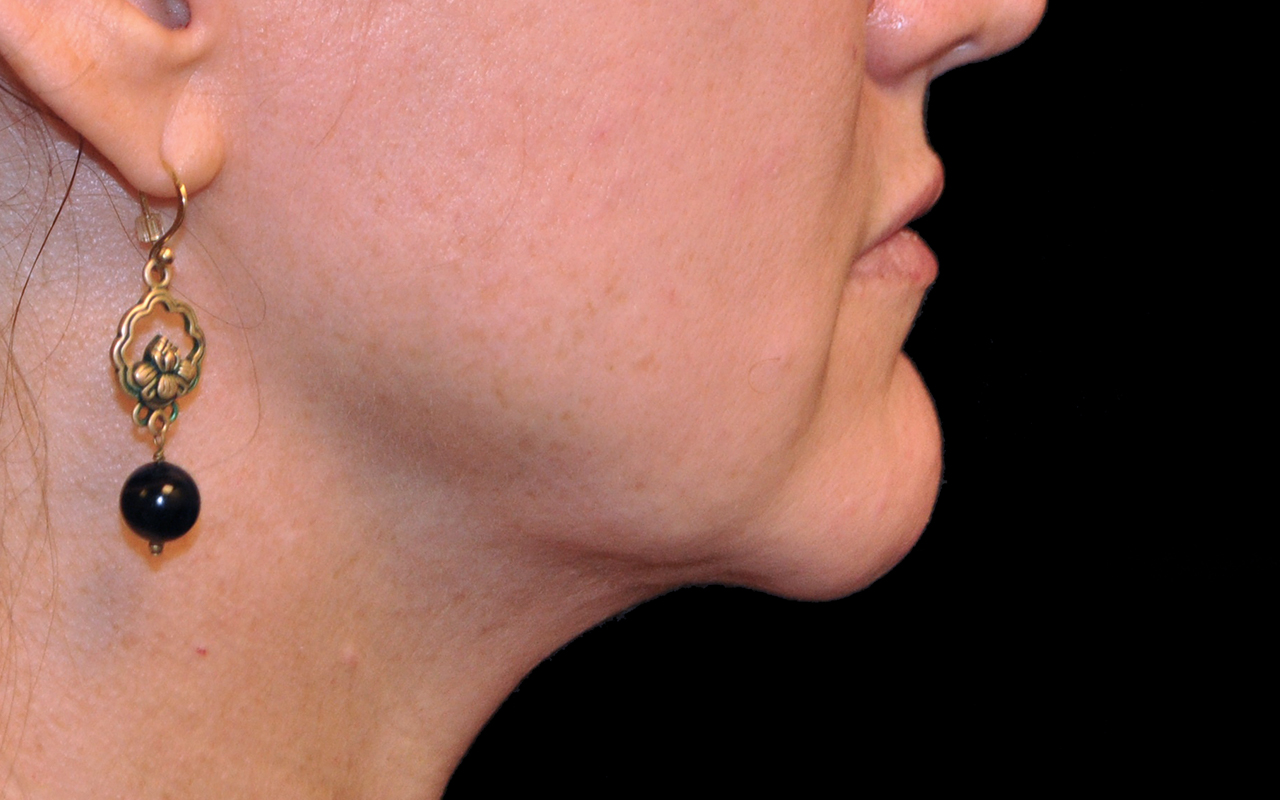 Liposuction Neck 2