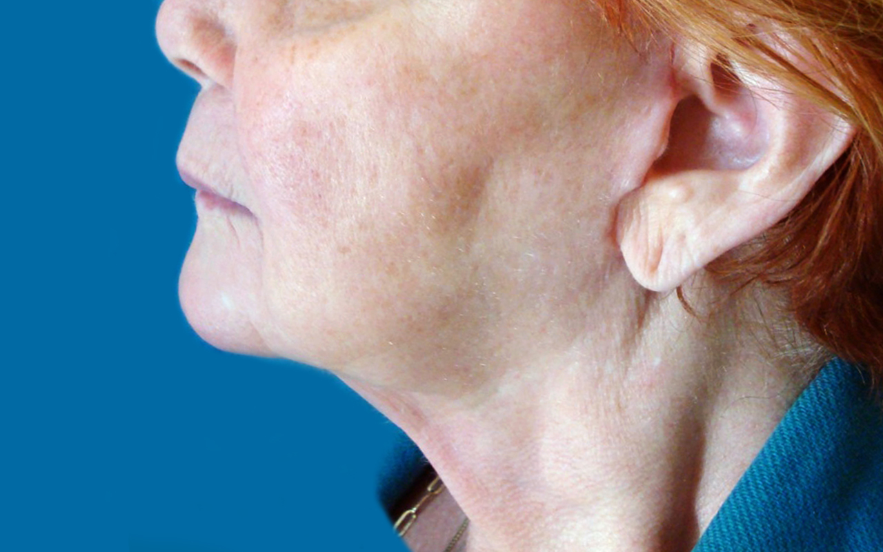 Liposuction Neck 3
