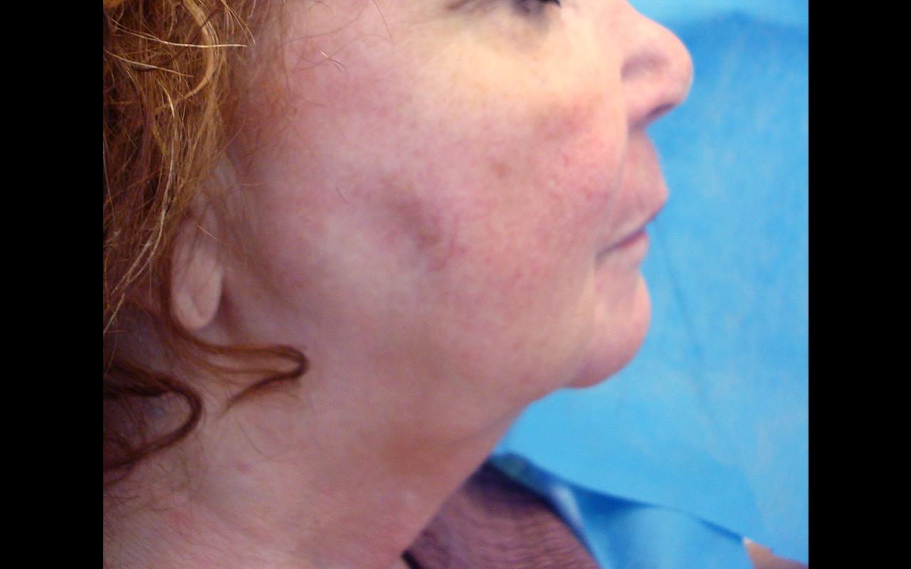 Liposuction Neck 3