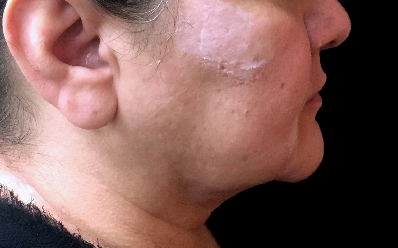 Liposuction Neck 4