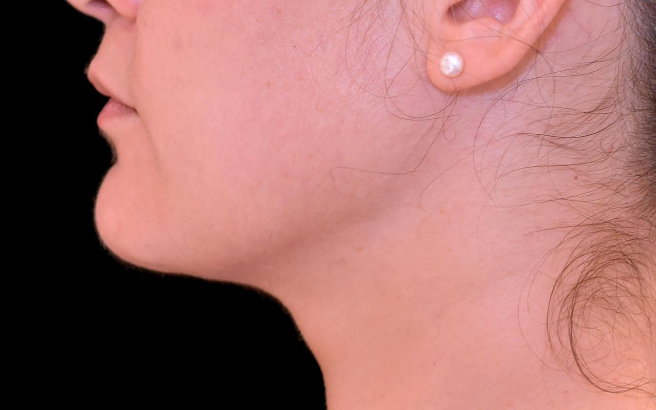 Liposuction Neck 5