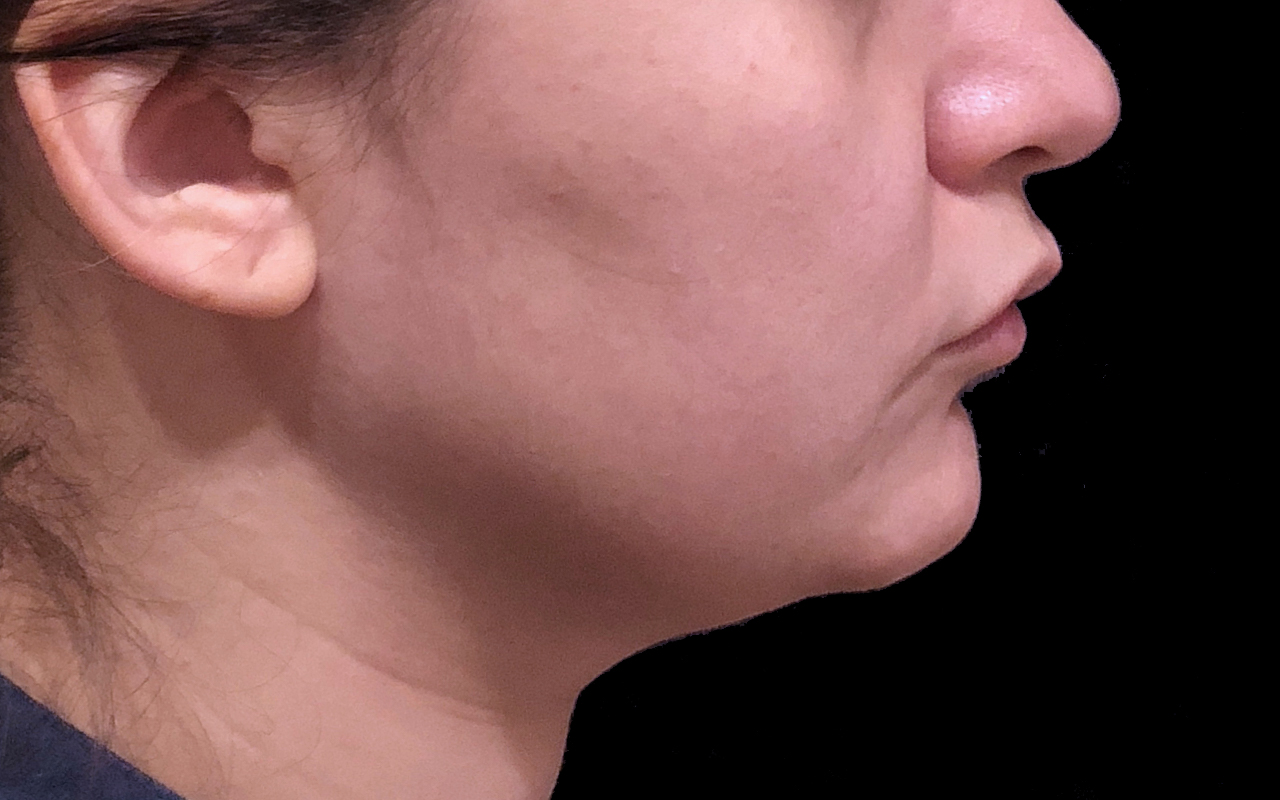 Liposuction Neck 5