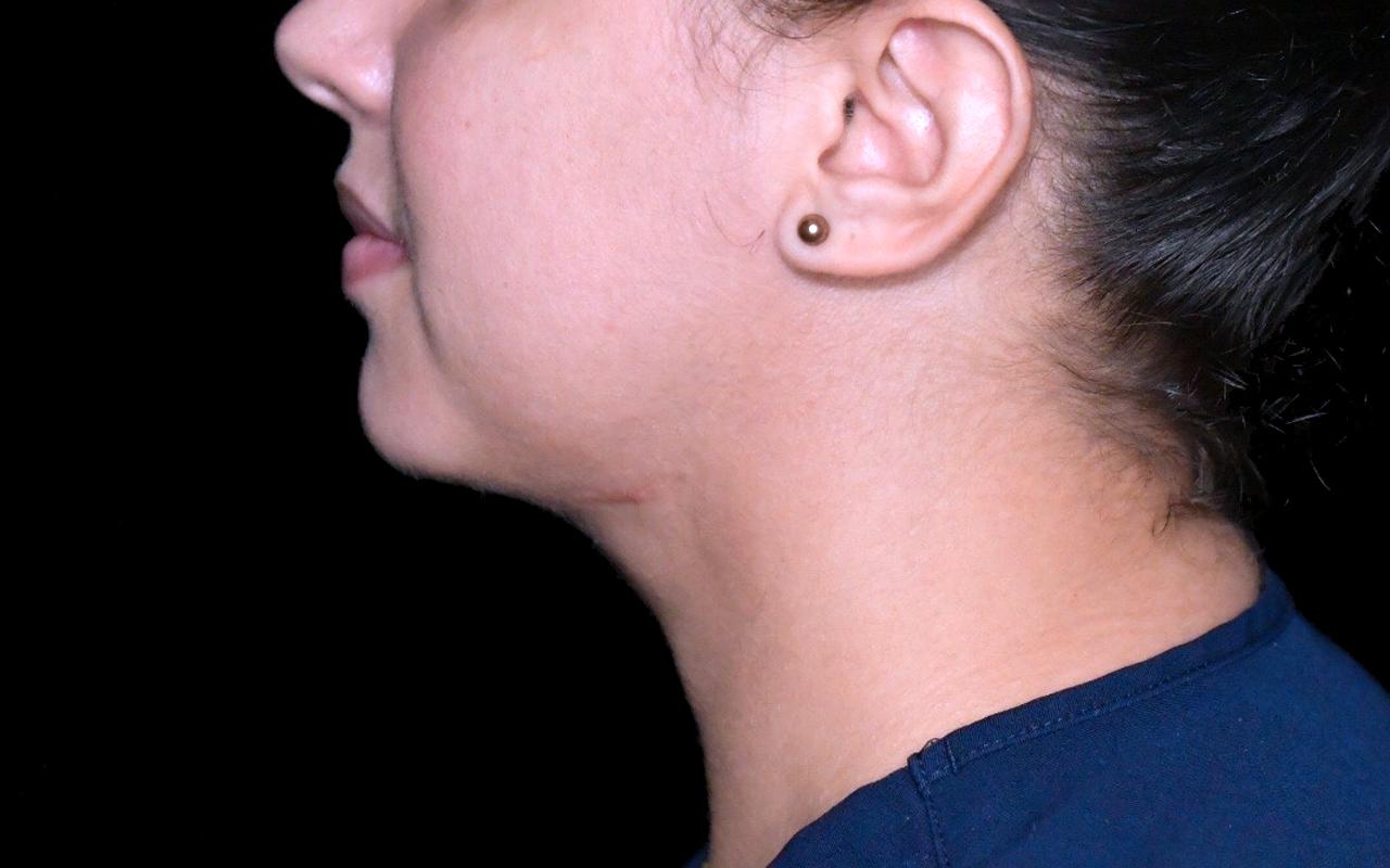 Liposuction Neck 6