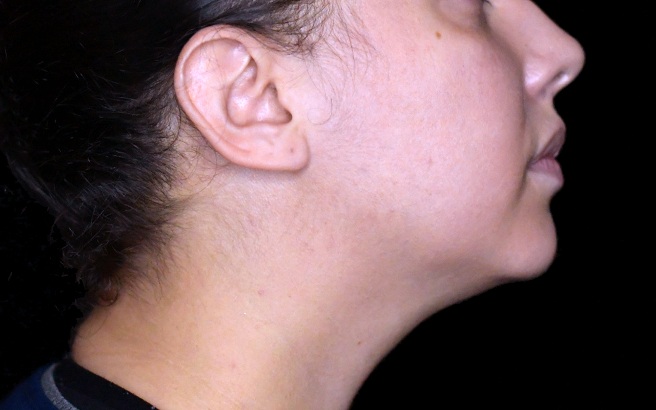Liposuction Neck 6