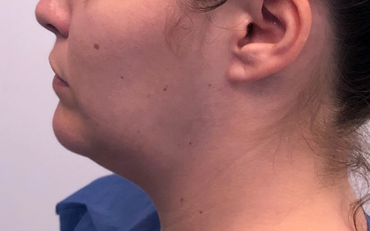 Liposuction Neck 7