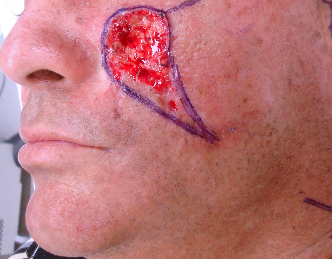 Mohs Surgery Cheek 2