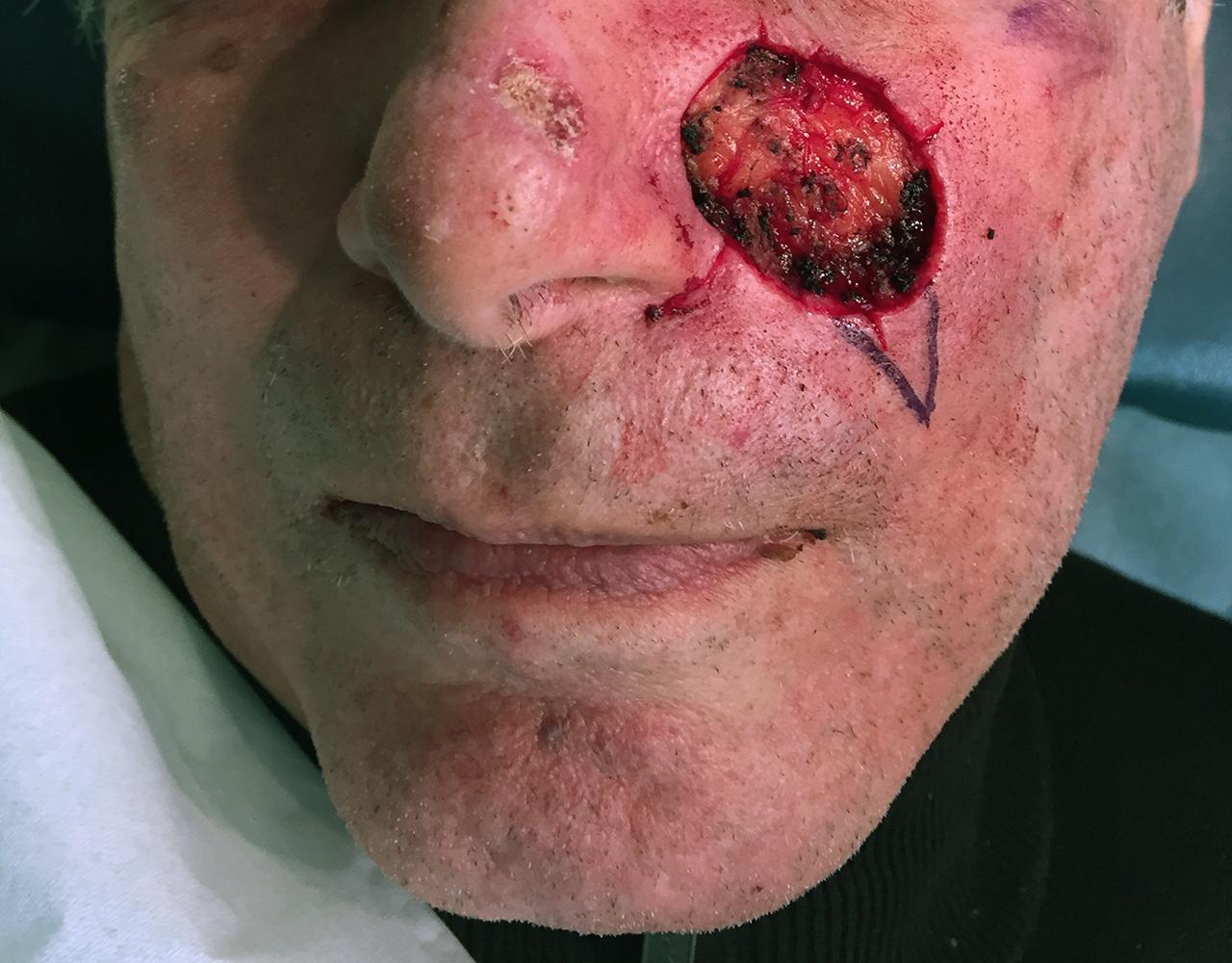 Mohs Surgery Cheek 4