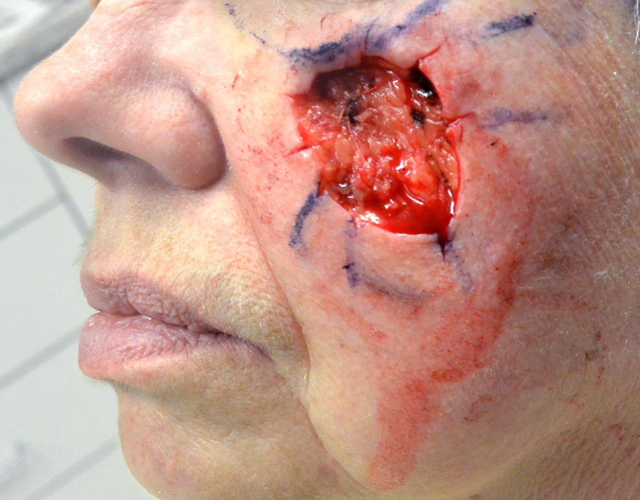 Mohs Surgery Cheek 7