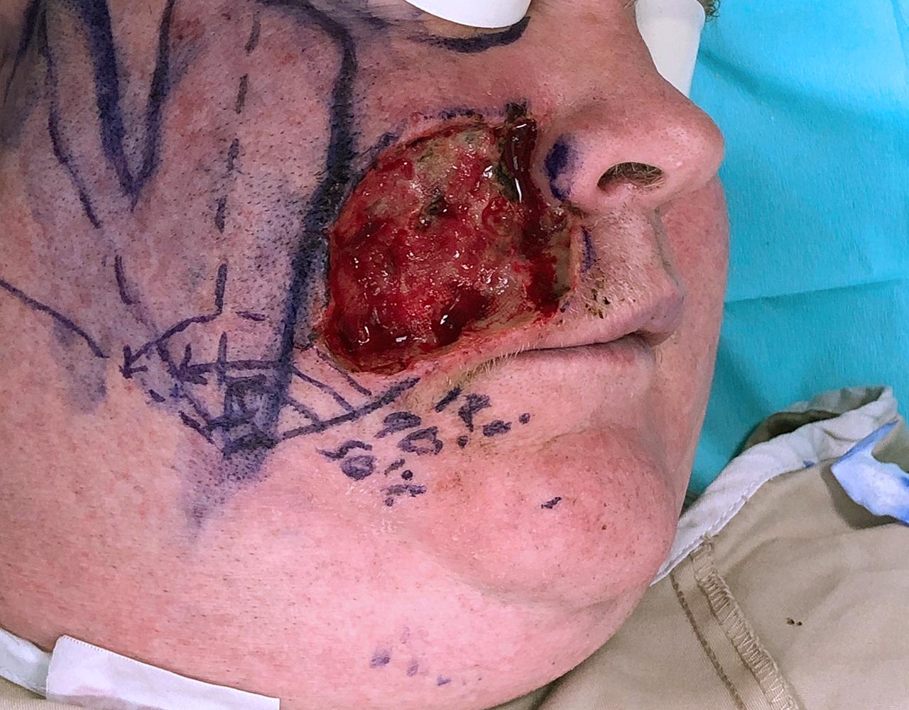 Mohs Surgery Cheek 10