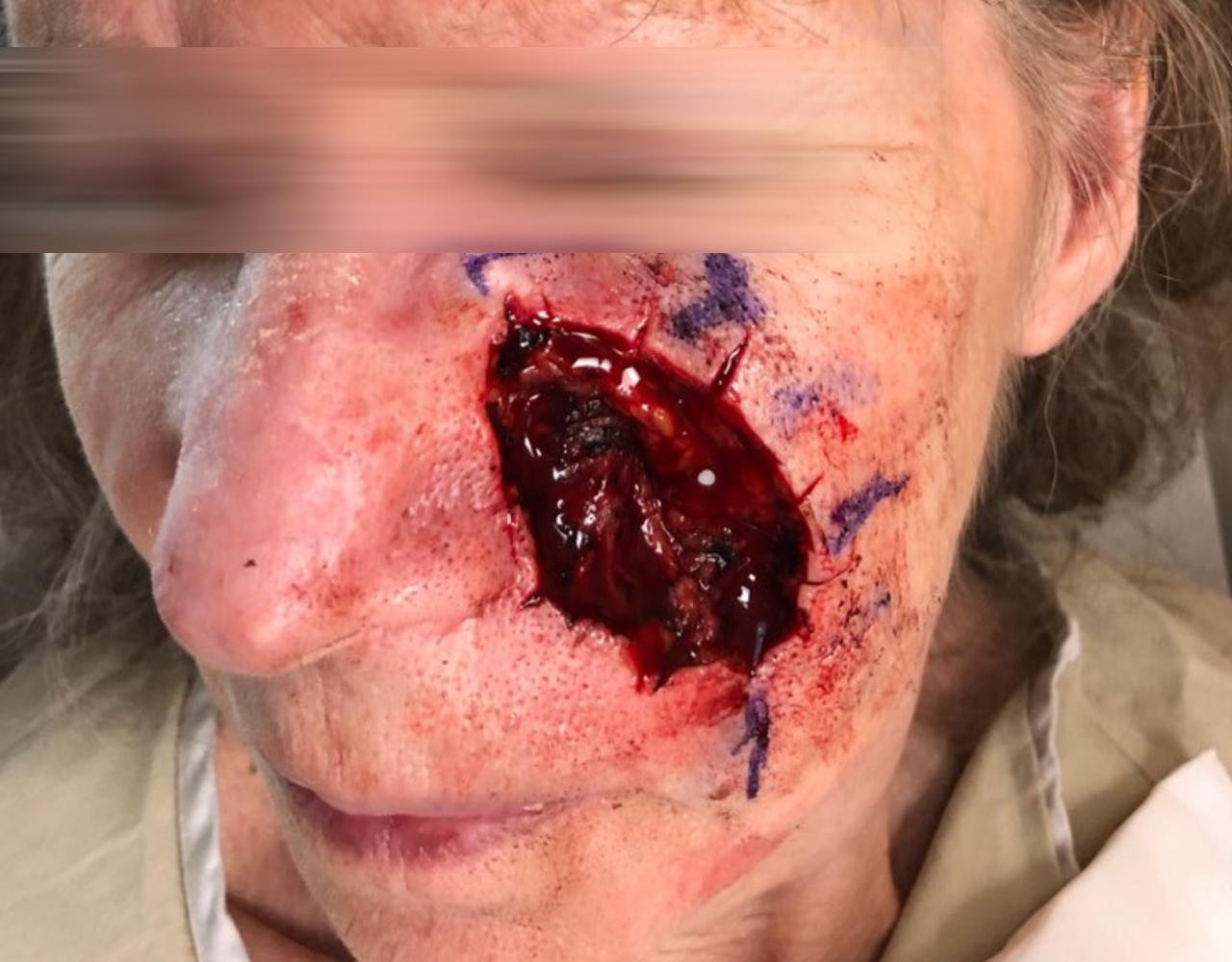 Mohs Surgery Cheek 11