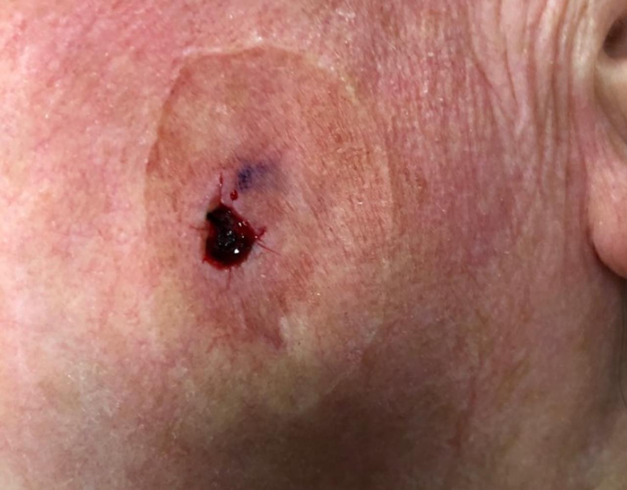 Mohs Surgery Cheek 13