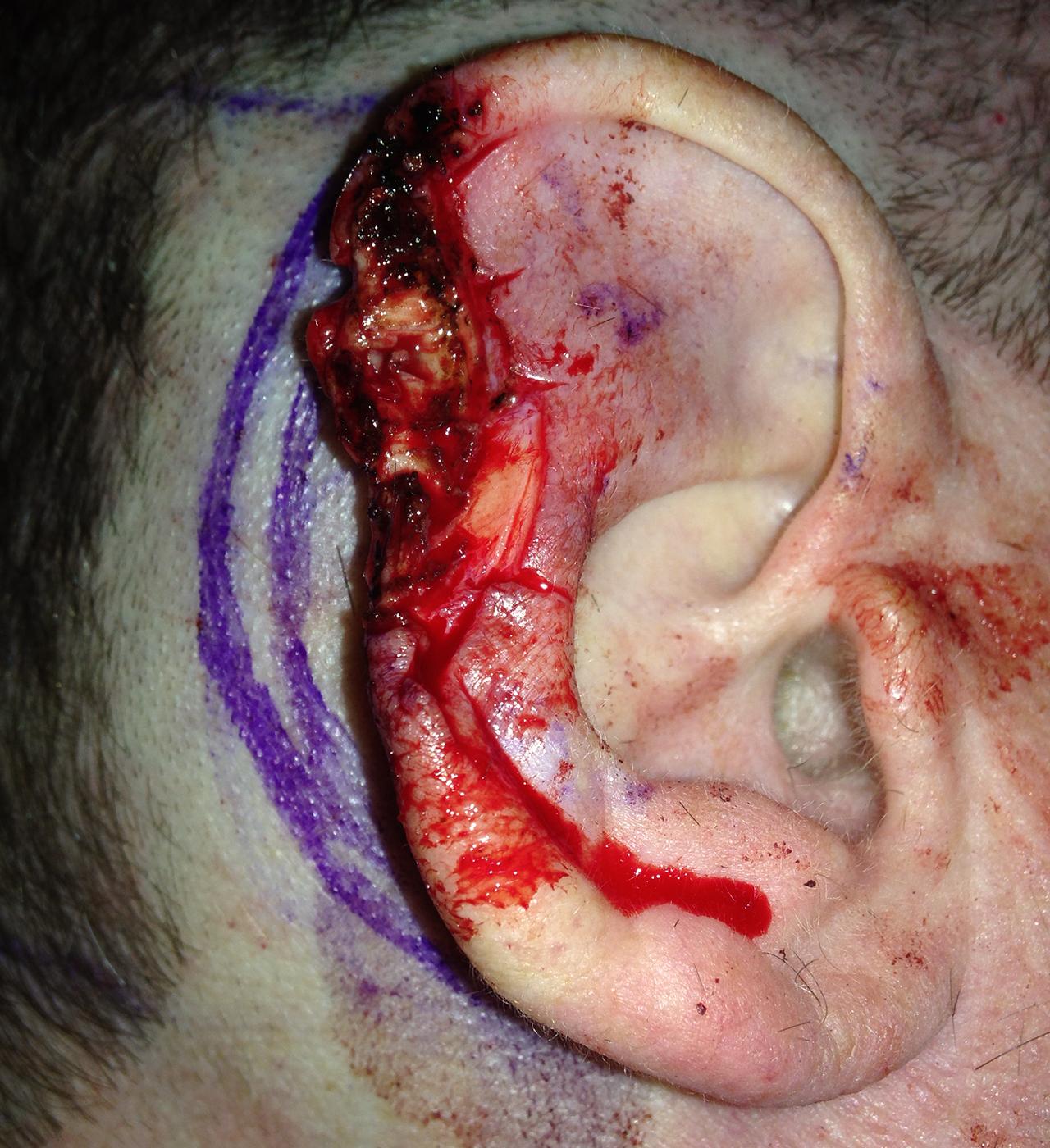 Mohs Surgery Ear