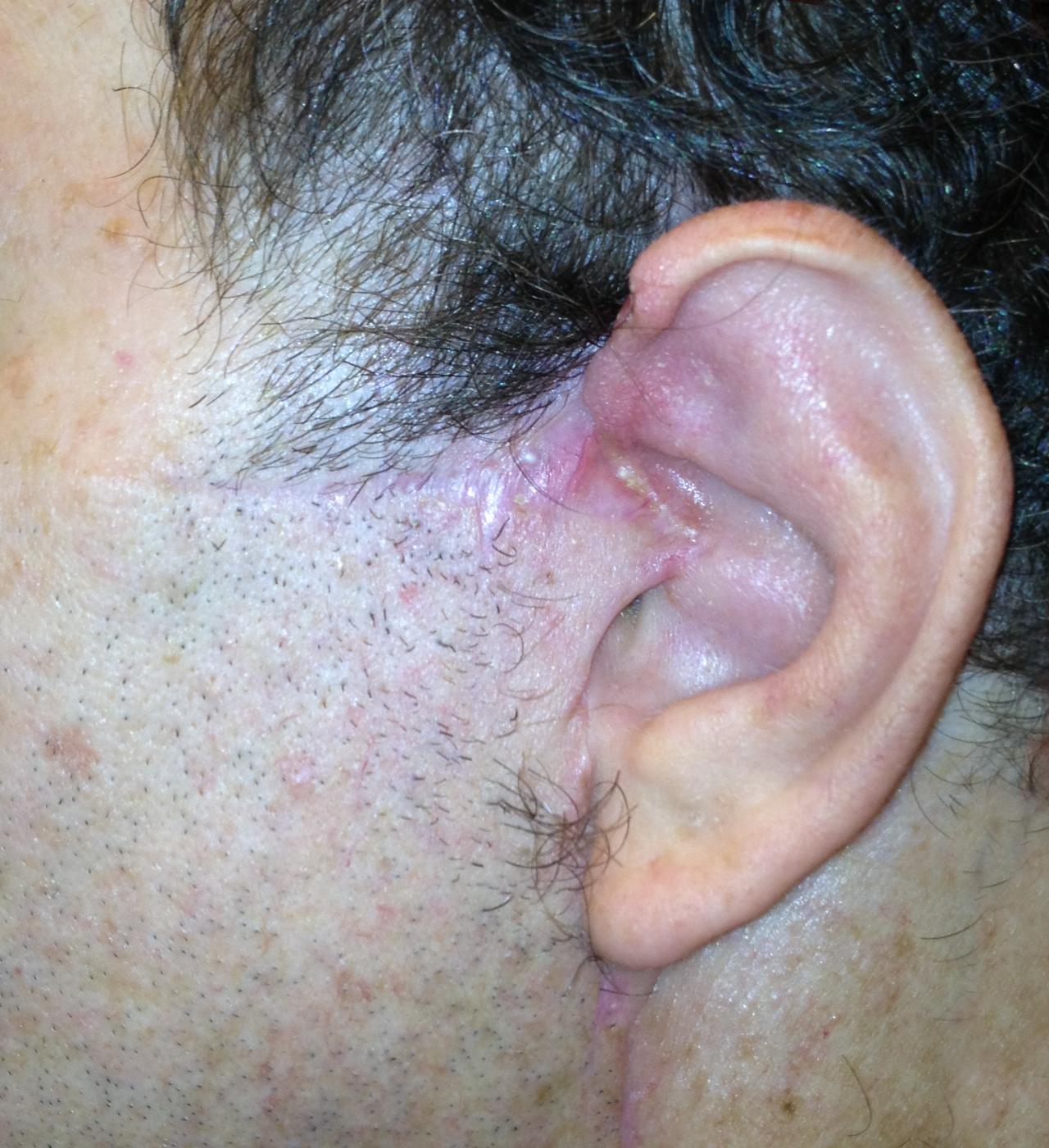 Mohs Surgery Ear 2