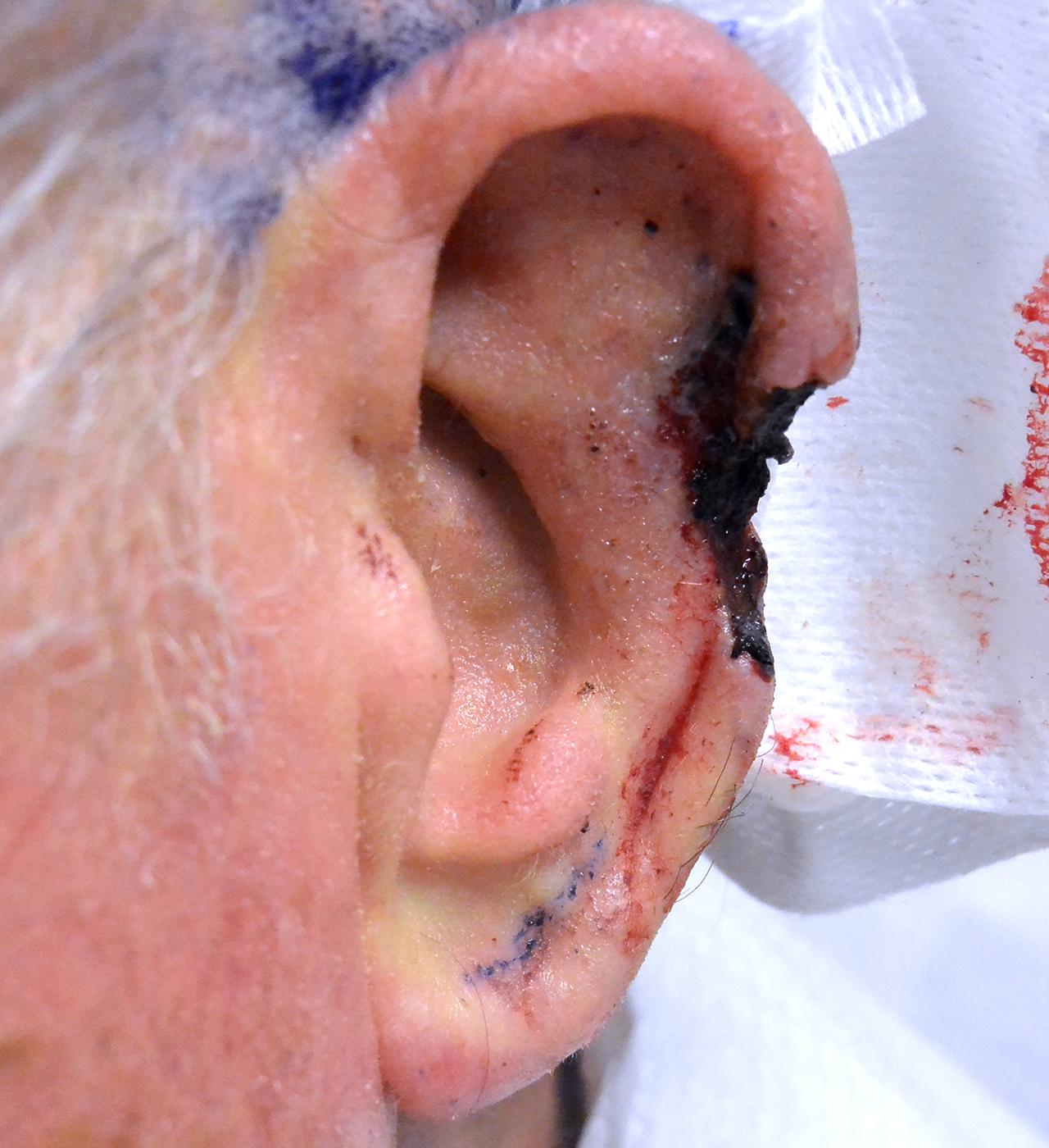Mohs Surgery Ear 3