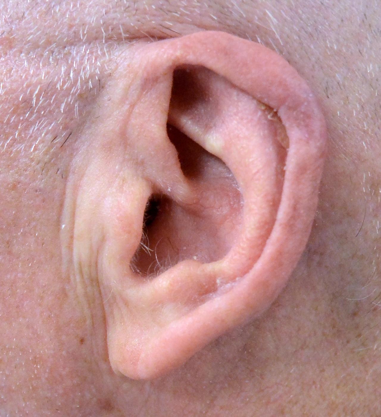 Mohs Surgery Ear 5